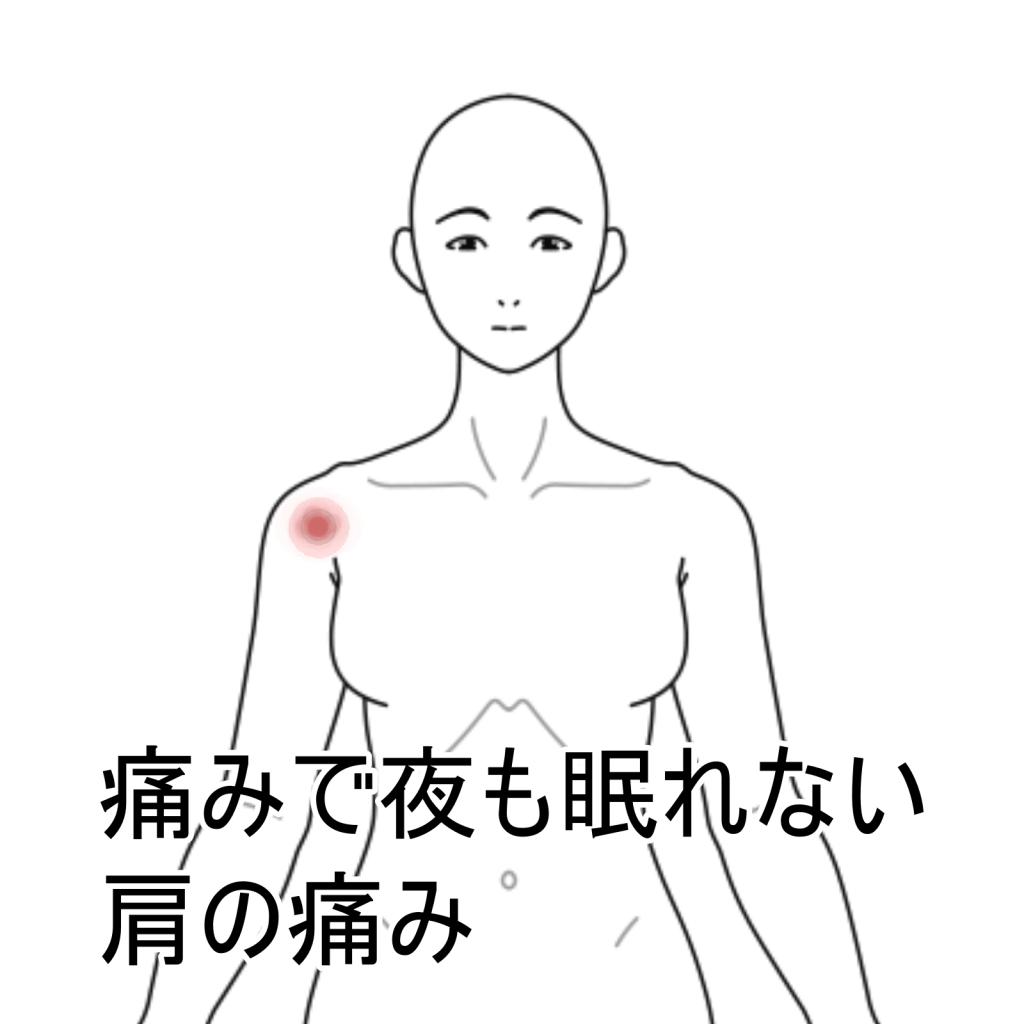 肩 の 痛み 石灰