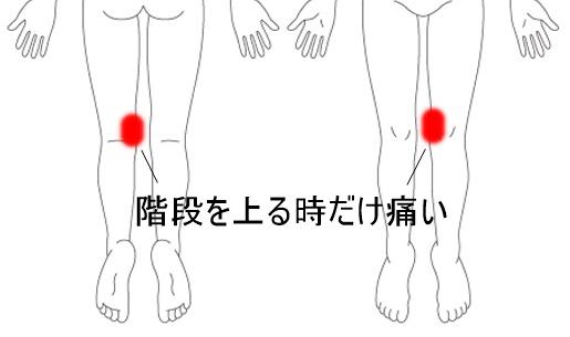 H28.12膝痛