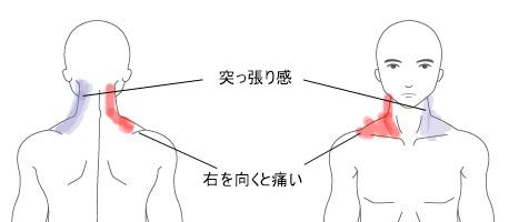 痛い 首 左側 首が左右の片側だけ痛い、首の筋肉をほぐしてもらっても良くならない、、、(アスリート鍼灸整骨院 袋井)